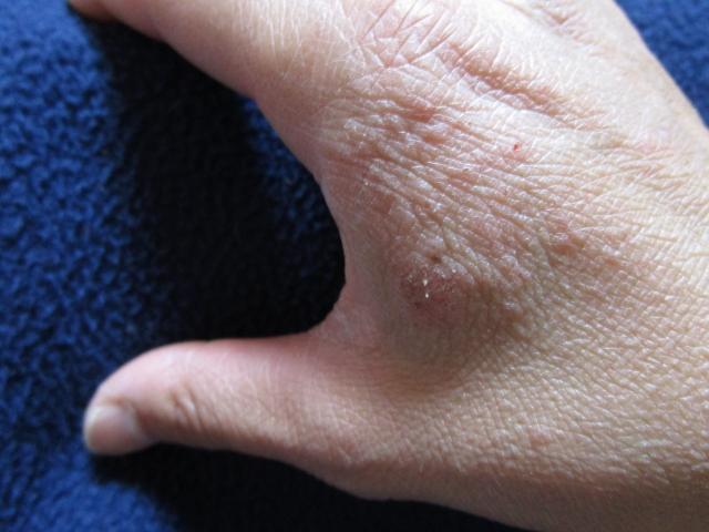 産後手湿疹