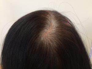 白髪が生えるメカニズム